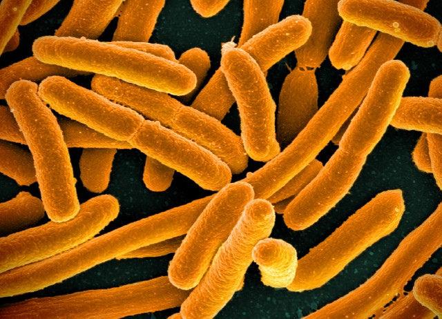Escherichia Coli Bakterien landen bei Dünndarmfehlbesiedlung in größeren Mengen im Dünndarm.